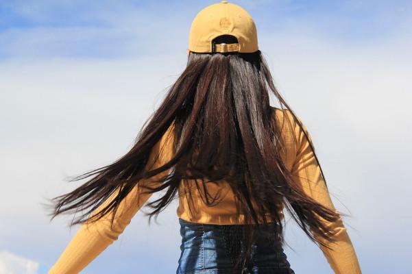生姜是天然生发药 头皮过度清洁反掉发
