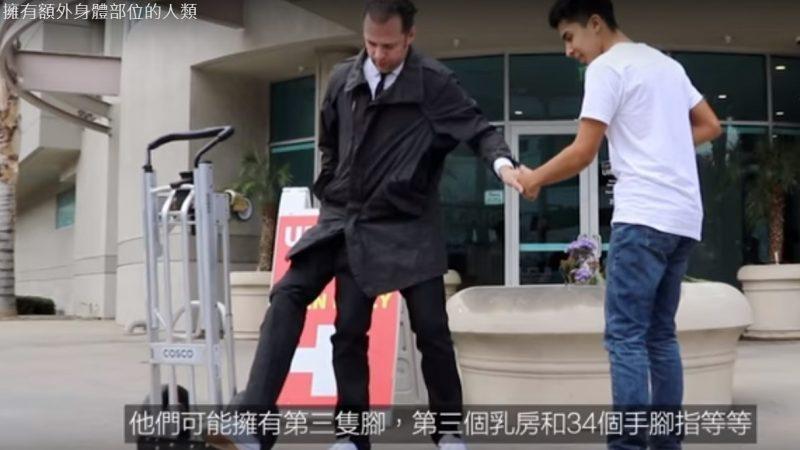 拥有额外身体部位的人类 第三只脚(视频)