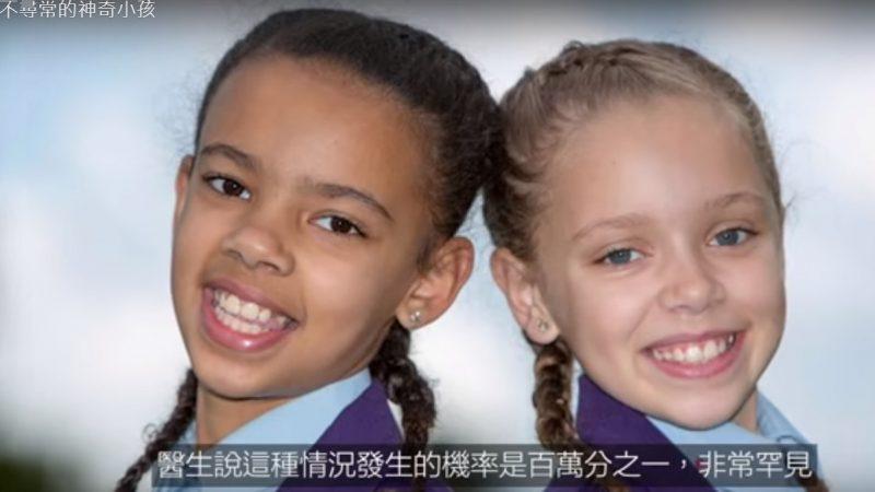 不寻常的小孩 一黑一白双胞胎(视频)