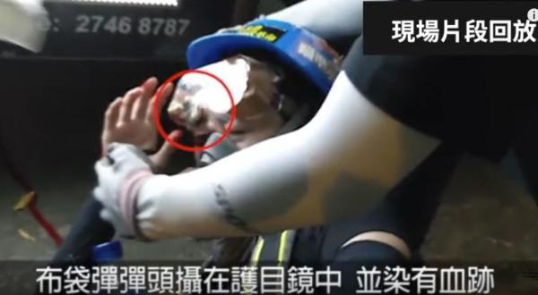视频证据 港少女爆眼一刻布袋弹插护目镜(视频)