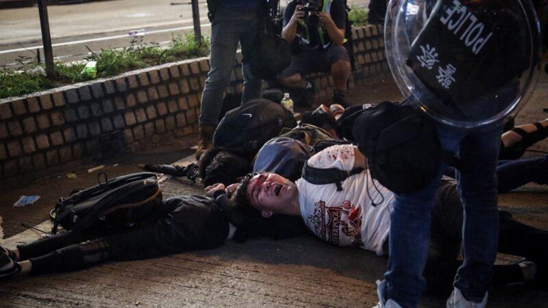 千余伤者不敢求医 港医悲叹:示威者搏命换公义