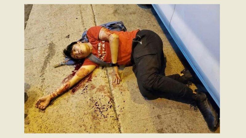 《石涛聚焦》人权法案刚通过 岑子杰即刻被袭击 习近平香港政策大败笔