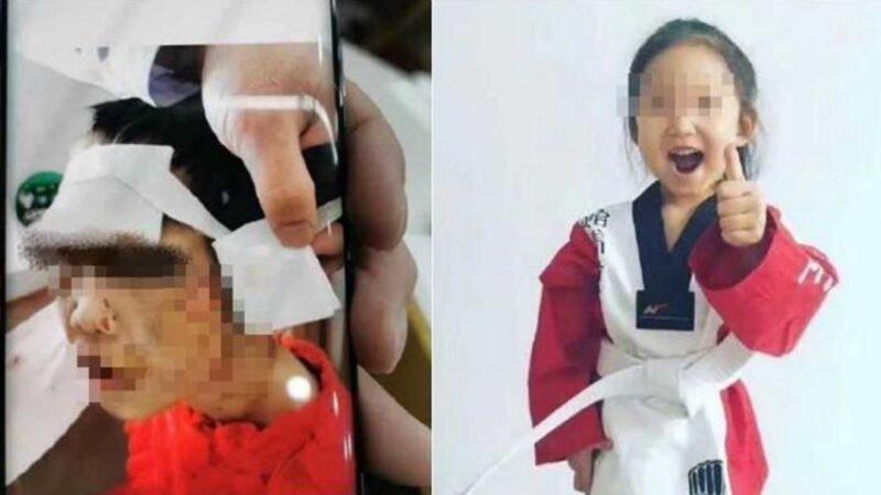 陆4岁女童遭继母虐致脑出血 多处烫伤嘴唇被剪
