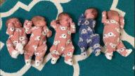 想生女兒意外迎來5胞胎 她照完超音波哭了1小時