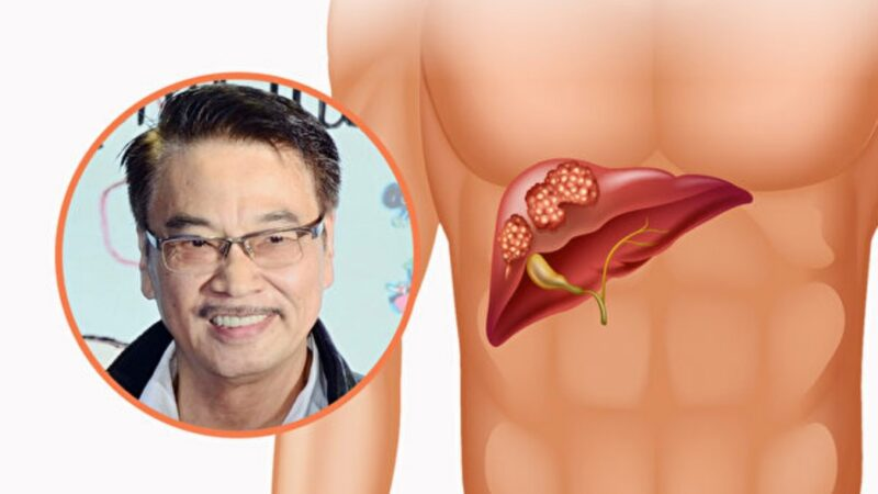 吴孟达病逝 肝癌一发现多是晚期夺命快 3招预防