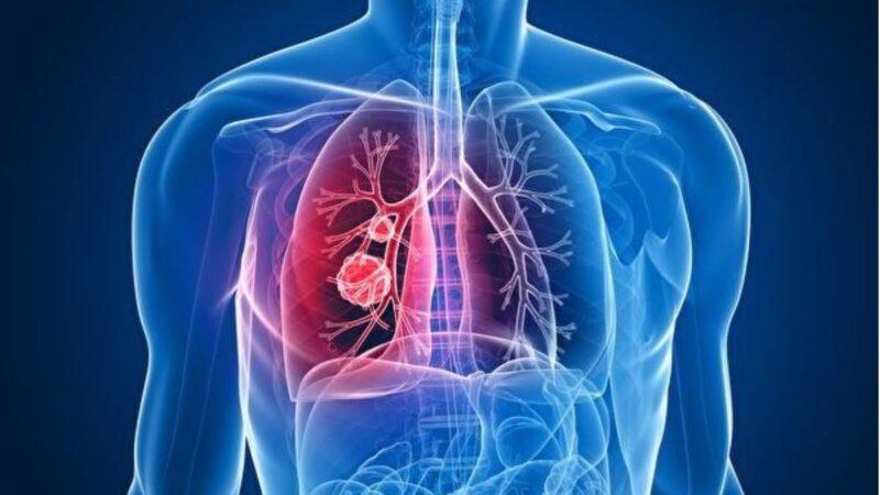 从不吸烟为何得肺癌? 新研究析因由