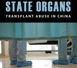 横河:专家如何看中国的器官移植