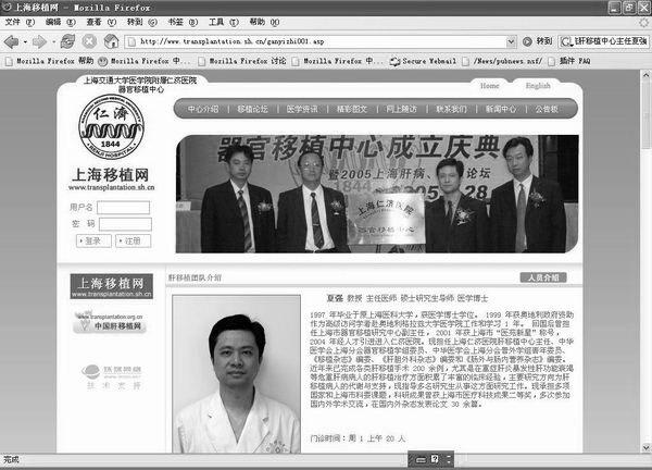"""""""乾坤挪移九小时""""?!上海医生做移植做到着魔"""