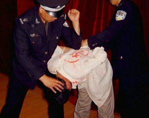 瀋陽齊向陽遭警察毆打致耳膜穿孔 被勒索萬元