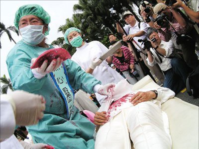 俞晓薇:当代大屠杀 最新活摘报告震惊世界