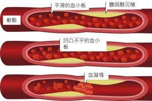 再不注意6個信號,你的血管就堵了!