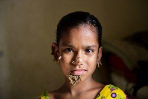 10歲女童臉長硬塊 疑為全球首例樹人症女病患