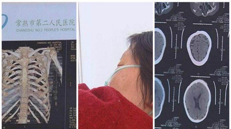江蘇兒子為房產打斷6旬母11根肋骨