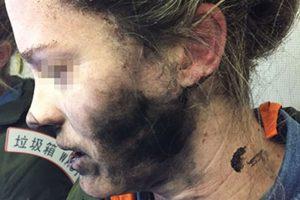 萬米高空耳機突爆炸 離京澳洲女被炸傷