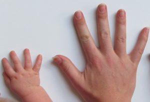 老中医说,如果指甲没这个东西,可能暗示著身体出了问题(视频)