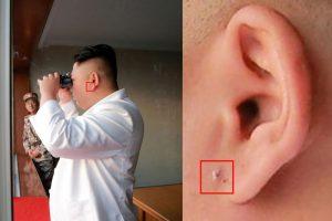 藏啥秘密?美专家发现金正恩照片耳部屡被PS