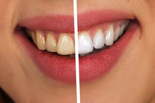 牙齿上白白的东西是牙结石前期,不注意清除后果很严重!