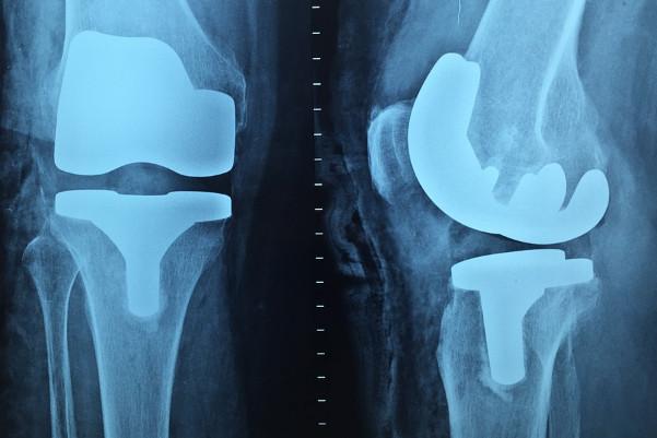 老中醫:治「膝蓋痛」超簡單,你家廚房就有藥材!
