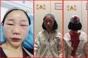 女游客昆明离奇遇袭 警方通报存4大蹊跷被疑撒谎