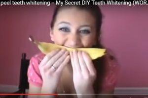 天然牙齿美白法 使用香蕉皮涂抹牙齿1分钟(视频)
