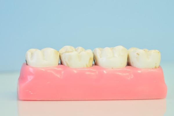 可怕的牙周病 快用这招预防80%蛀牙