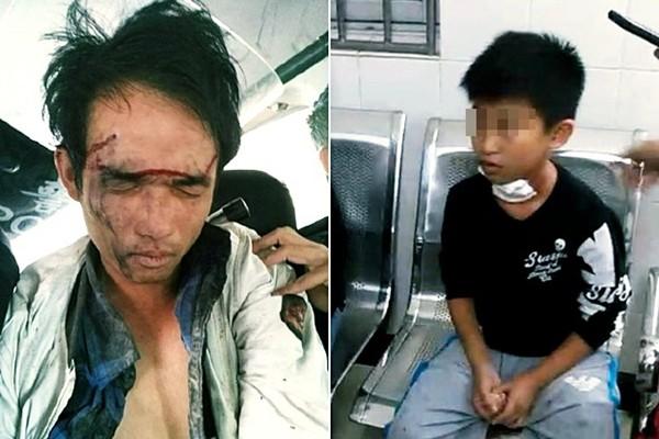 海南男持刀闯小学 5学童被刺伤送院