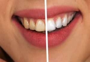 牙齿变黄怎么办 教你3分钟变白(视频)