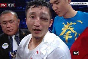 鄒市明左眼近「失明」眼眶骨折達傷殘標準