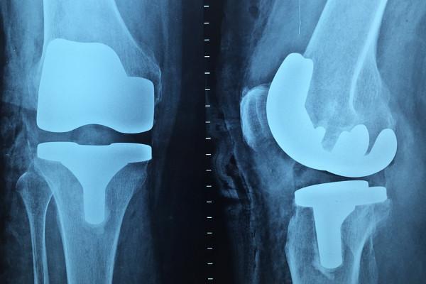 每天这样做 远离膝关节炎(视频)