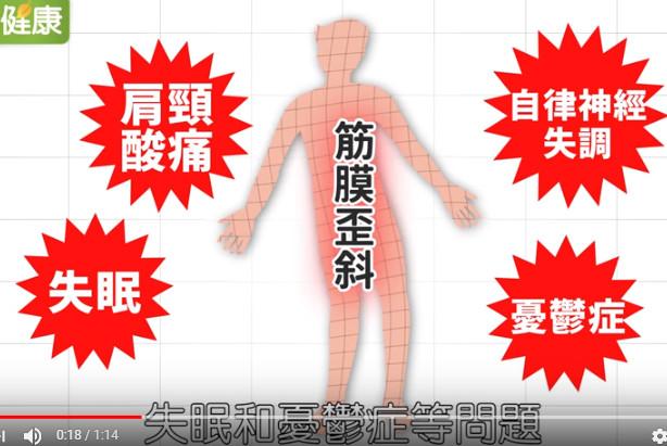 改善失眠、肩頸痛、憂鬱症 1招矯正筋膜歪斜運動(視頻)