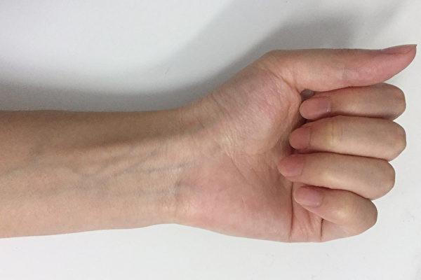 看一眼手腕 你的静脉血管是蓝色的吗?