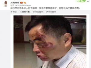 """昆山反杀案爆新料 网传脸伤人非""""龙哥终结者"""""""