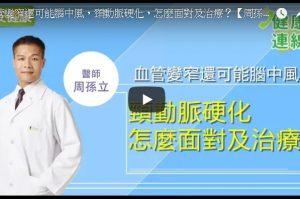 医师:头部胀痛、脑中风 颈动脉硬化预防方法(视频)