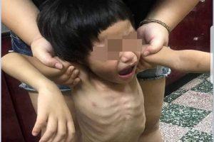 竹市童被關陽台骨瘦如柴 餓到吃糞便 生母救援崩潰
