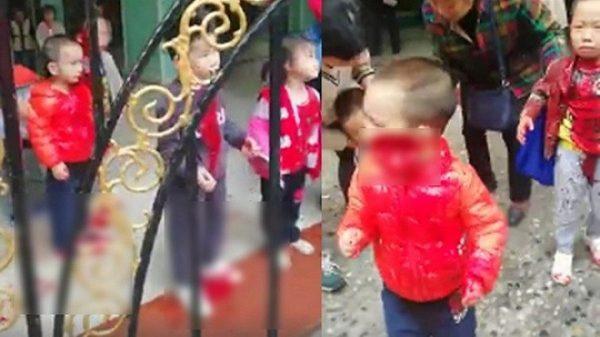 突發:重慶紅衣女闖幼稚園 亂刀砍傷14幼童