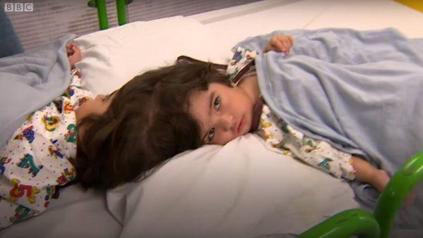 罕见连脑婴 英动员百医经50小时分割成功