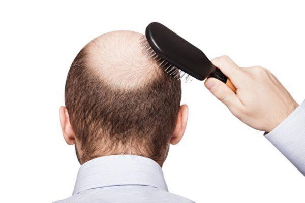 研究者发明用干细胞治疗脱发
