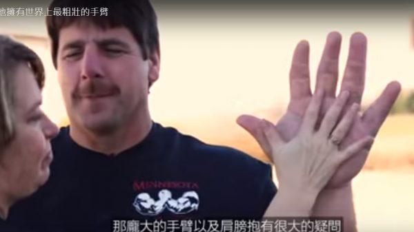 世上最粗壯的手臂 擁有獨特外表的人類(視頻)