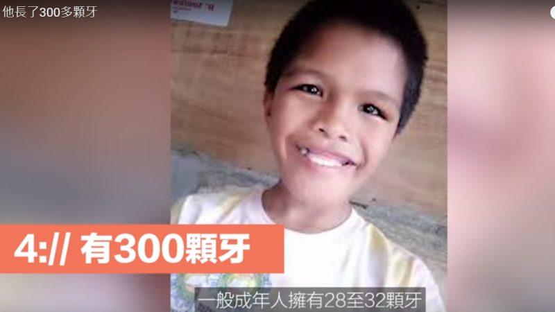 男童长了300多颗牙 患有罕见病症却不向命运低头的小孩(视频)