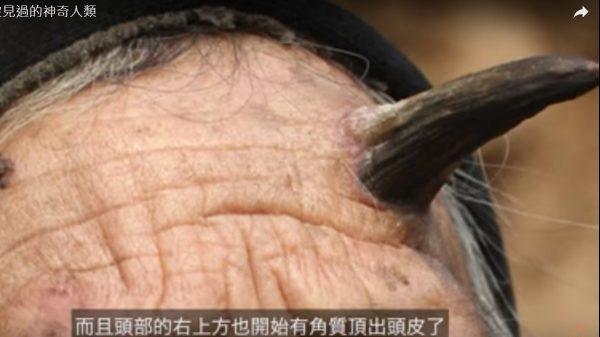 5位你没见过的人类 长角老人(视频)