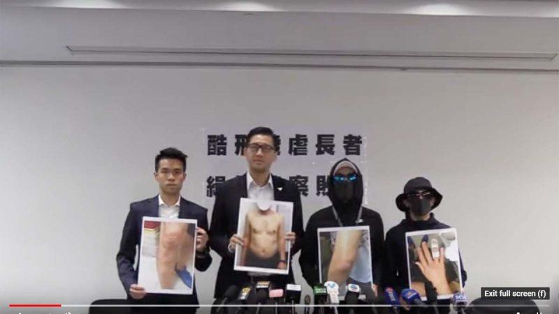 港警滥用私刑案:警方称不知有监控 被揭撒谎包庇