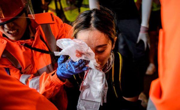 港警瞄头狂射布袋弹 女子中弹眼球破裂恐失明(视频)