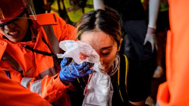 港警瞄頭狂射布袋彈 女子中彈眼球破裂恐失明(視頻)