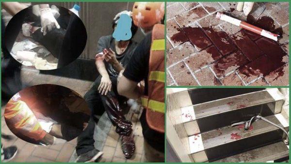 香港黑帮持刀砍伤示威者 血流满地伤见骨