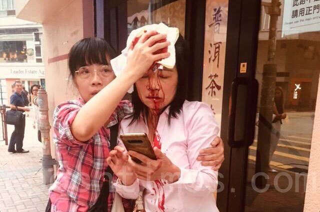 港法轮功学员遇袭血流满面 香港学会严厉谴责吁彻查(视频)