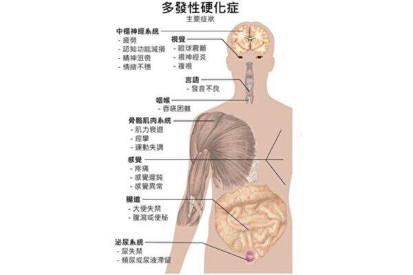 新方法可预防和逆转多发性硬化症