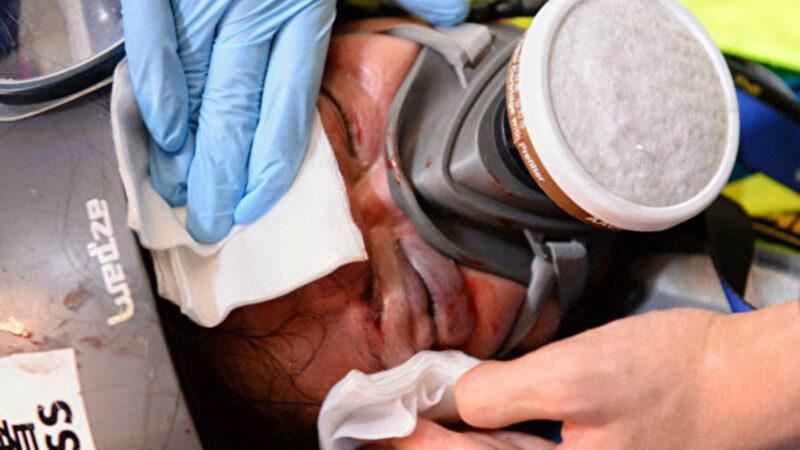 """印尼女记者采访""""反送中""""遭枪击 右眼永久失明"""