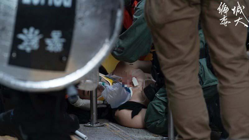 學生十一示威被槍擊輿論嘩然 港警一天前發殺人預告(視頻)