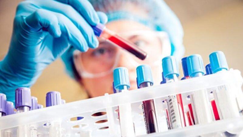 新研究:通過驗血提早五年查出乳癌