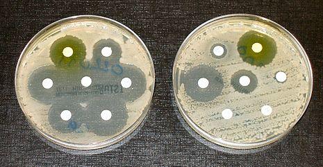 超级细菌30年或致死40万加人 专家支招